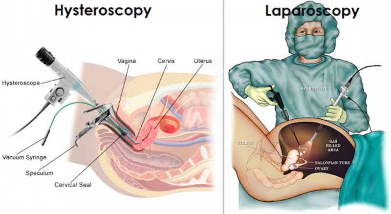 laparoscopy-and-hysteroscopy_800